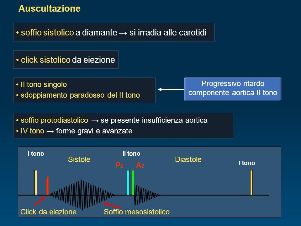 Progressivo ritardo componente aortica II tono