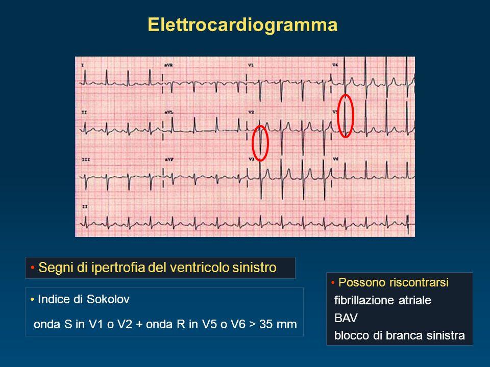 Elettrocardiogramma Segni di ipertrofia del ventricolo sinistro