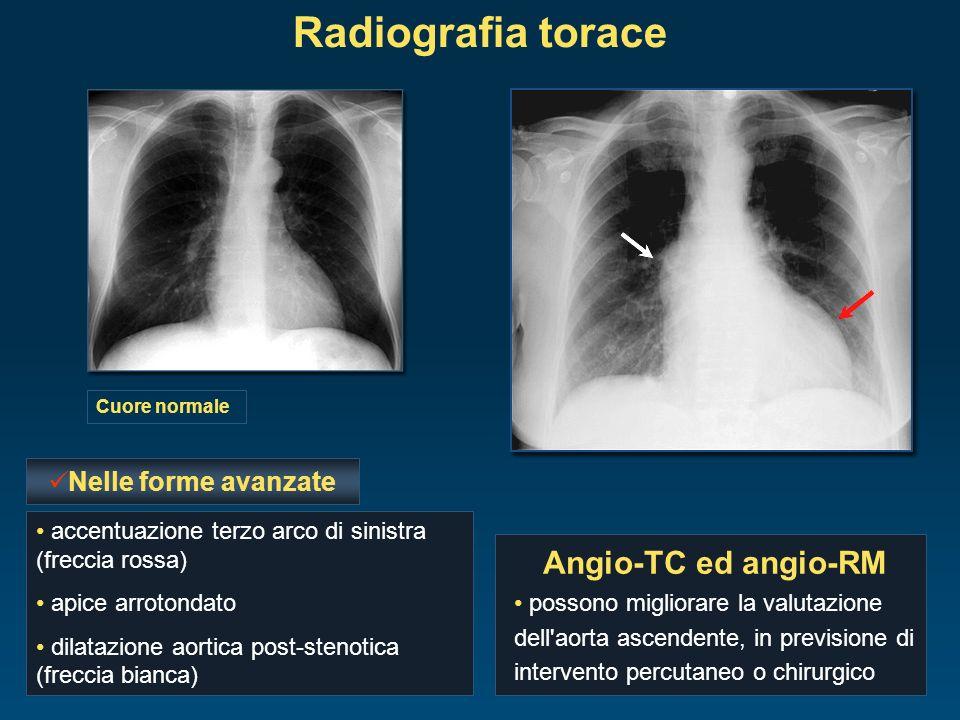 Radiografia torace Angio-TC ed angio-RM Nelle forme avanzate
