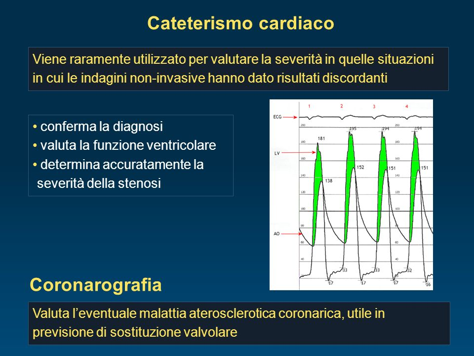 Cateterismo cardiaco Coronarografia