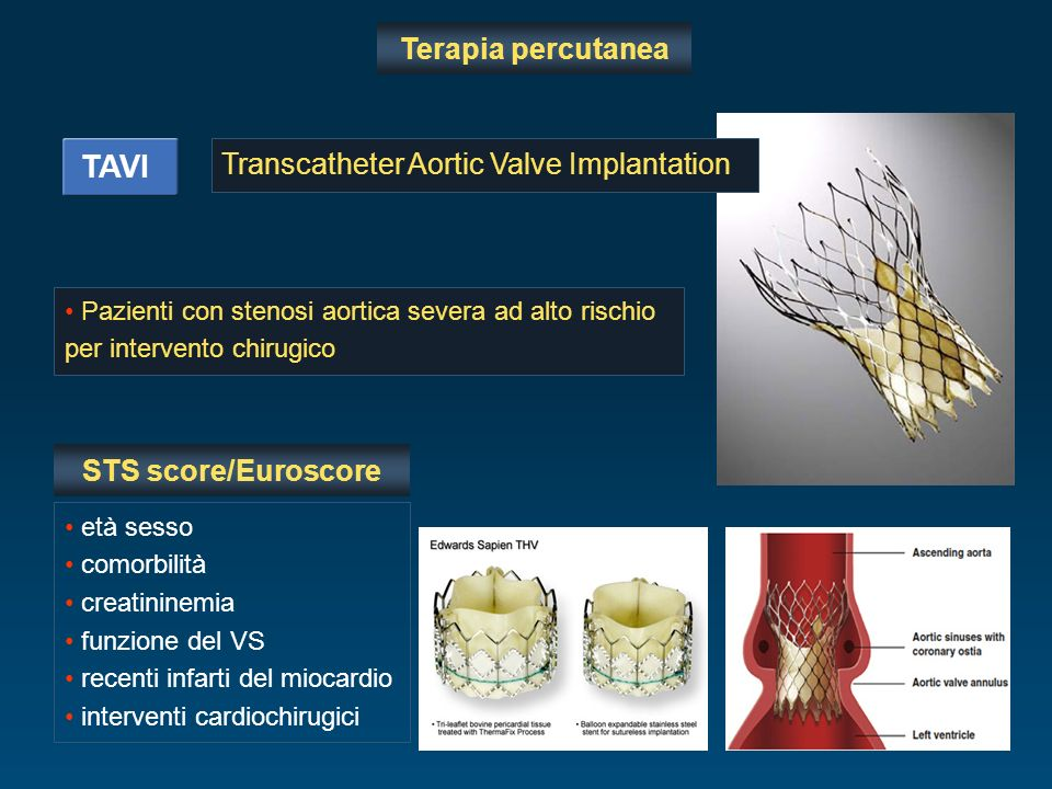 TAVI Terapia percutanea Transcatheter Aortic Valve Implantation