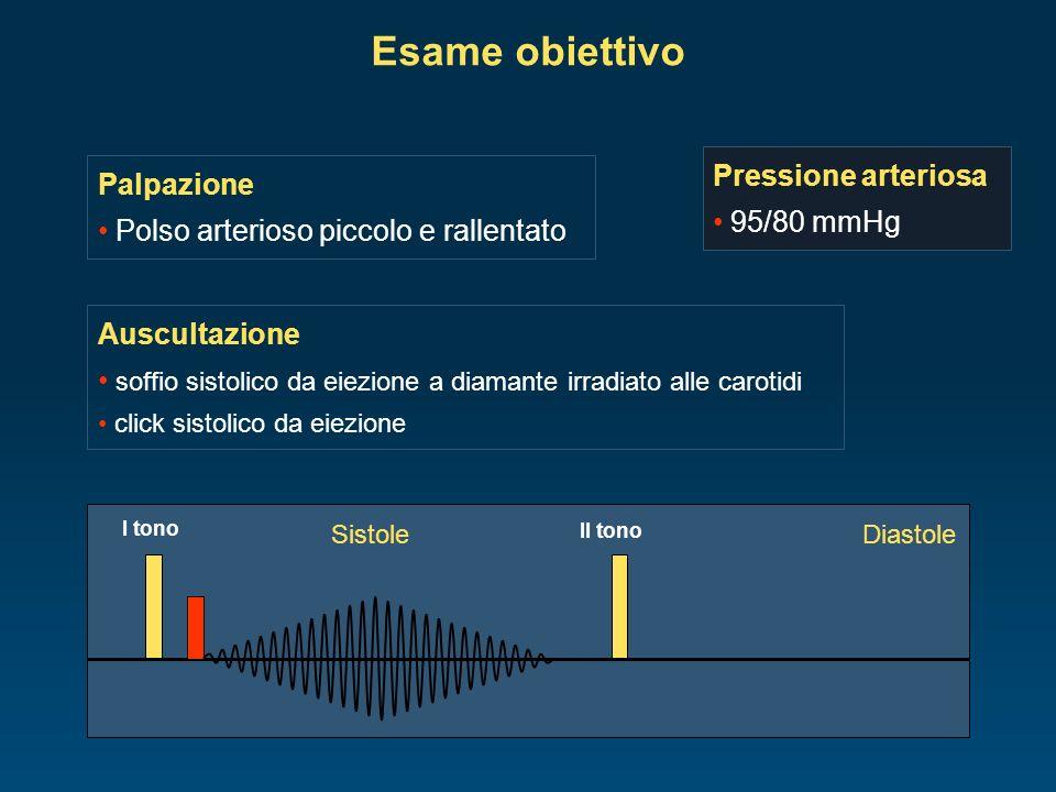 Esame obiettivo Pressione arteriosa Palpazione 95/80 mmHg