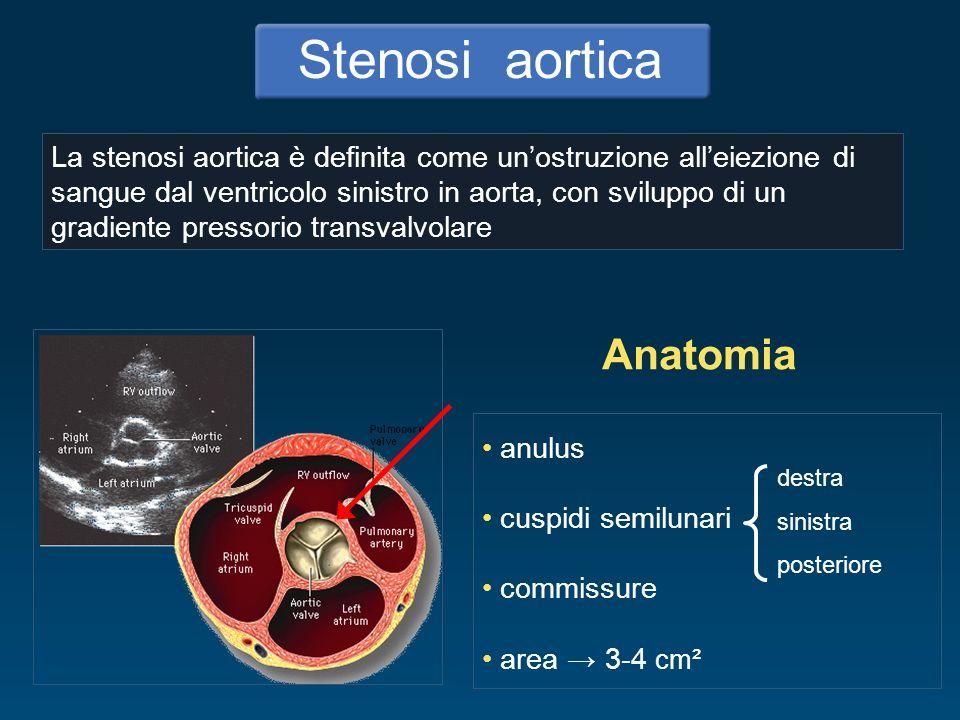 Stenosi aortica Anatomia