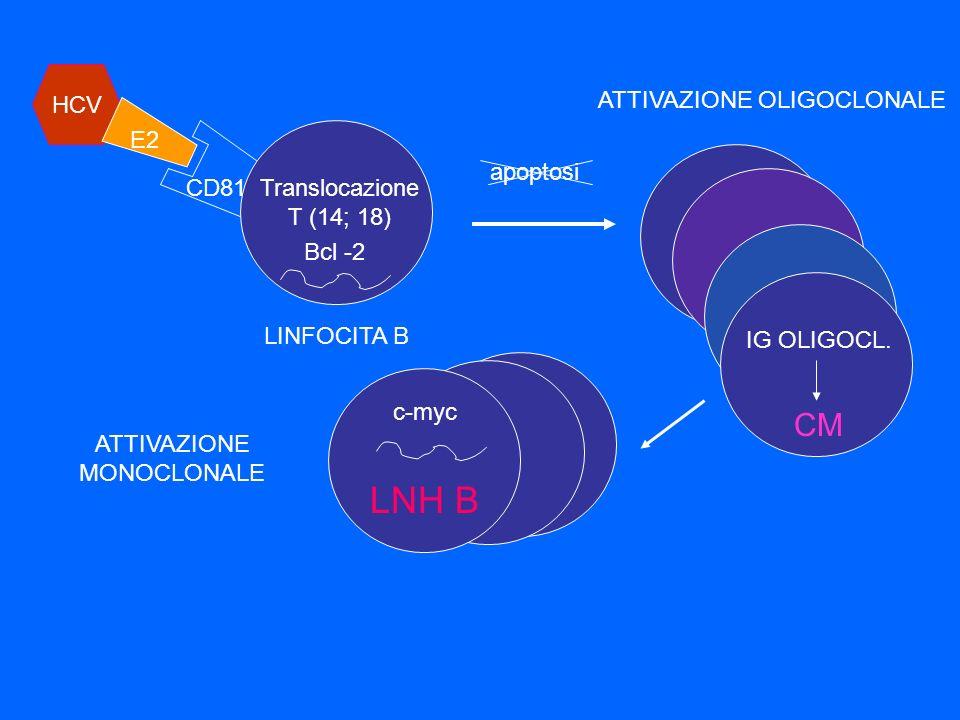 LNH B CM HCV ATTIVAZIONE OLIGOCLONALE E2 IG OLIGOCL. apoptosi CD81