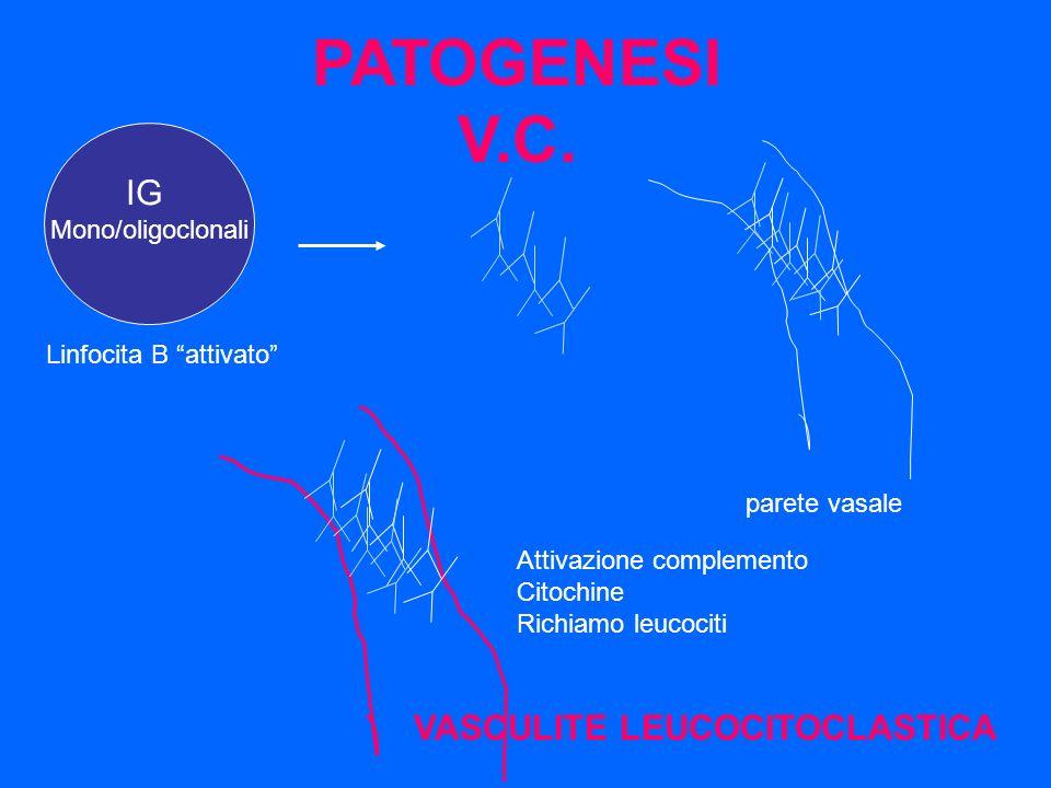 PATOGENESI V.C. IG VASCULITE LEUCOCITOCLASTICA Mono/oligoclonali