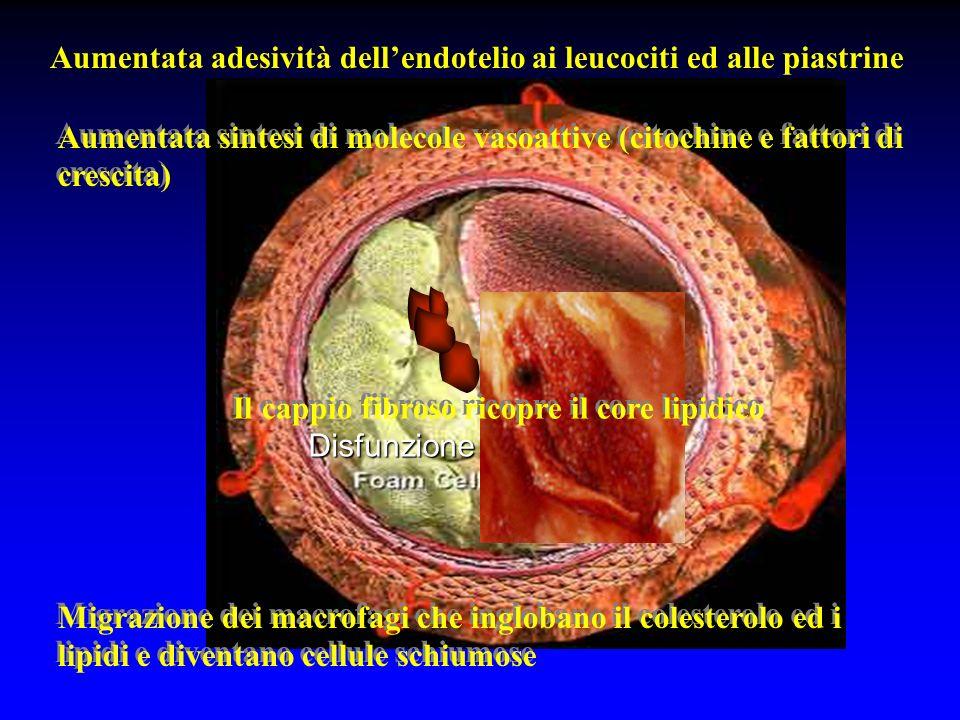 Aumentata adesività dell'endotelio ai leucociti ed alle piastrine
