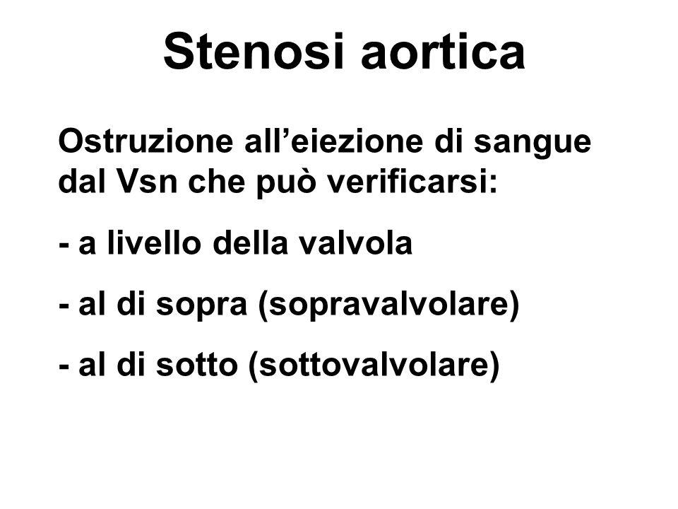Stenosi aortica Ostruzione all'eiezione di sangue dal Vsn che può verificarsi: - a livello della valvola.
