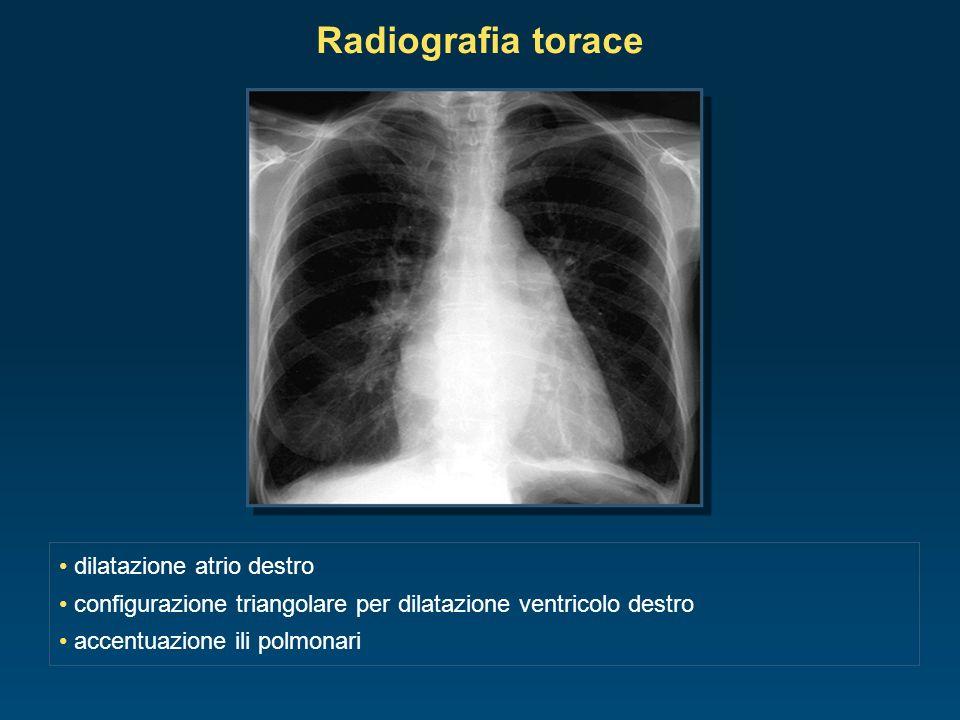 Radiografia torace dilatazione atrio destro