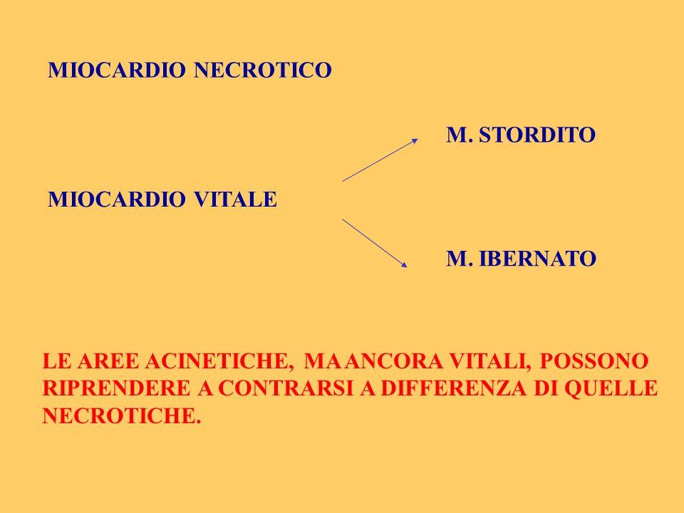 MIOCARDIO NECROTICO M. STORDITO. MIOCARDIO VITALE. M. IBERNATO.