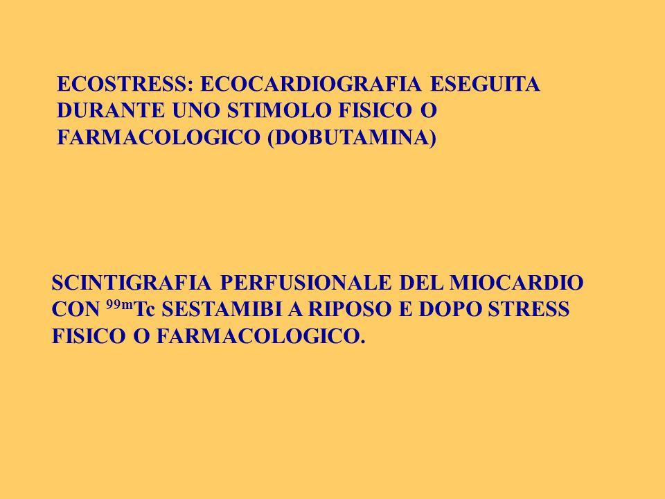 ECOSTRESS: ECOCARDIOGRAFIA ESEGUITA DURANTE UNO STIMOLO FISICO O FARMACOLOGICO (DOBUTAMINA)