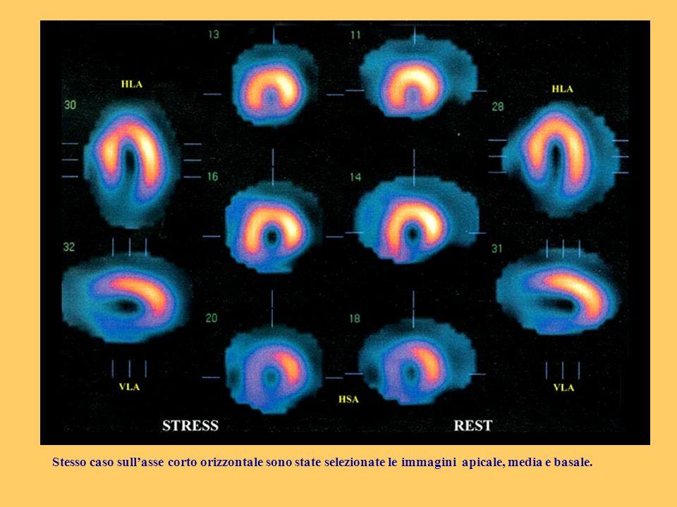 Stesso caso sull'asse corto orizzontale sono state selezionate le immagini apicale, media e basale.