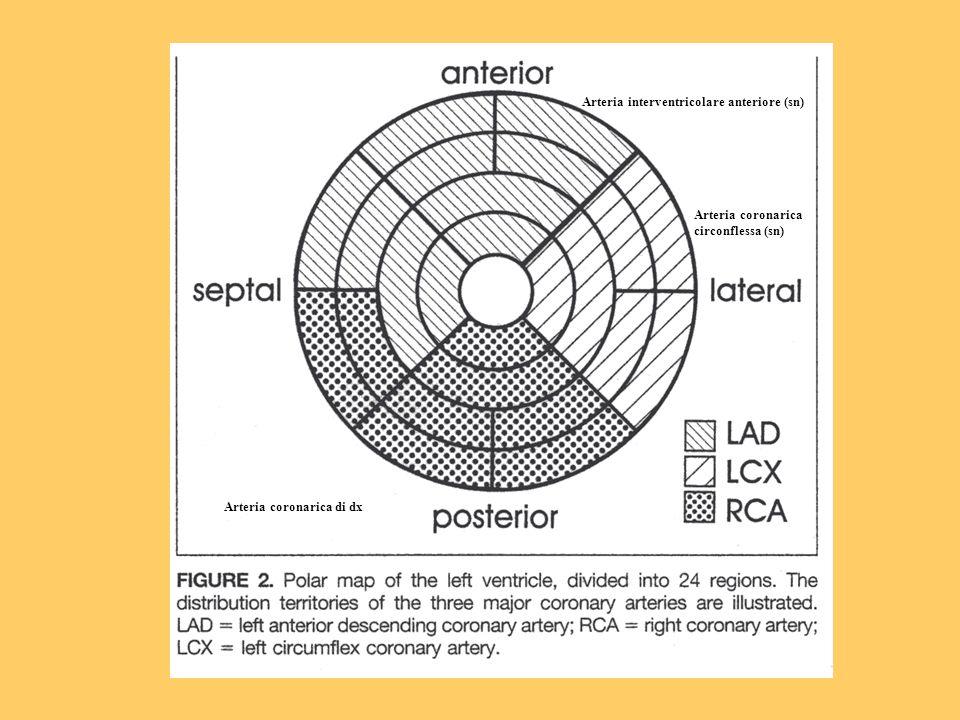 Arteria interventricolare anteriore (sn)