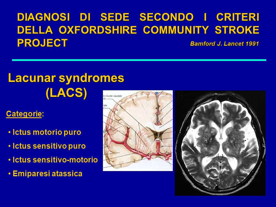 Lacunar syndromes (LACS)