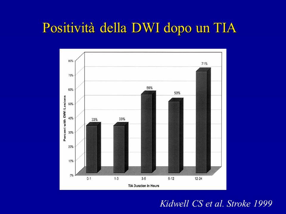Positività della DWI dopo un TIA