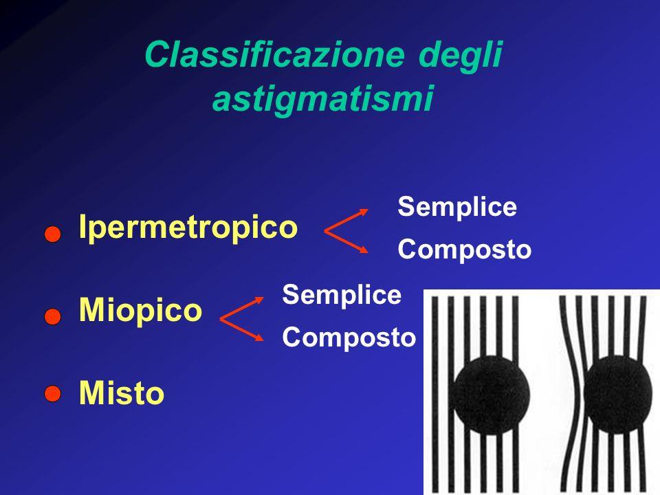 Classificazione degli astigmatismi