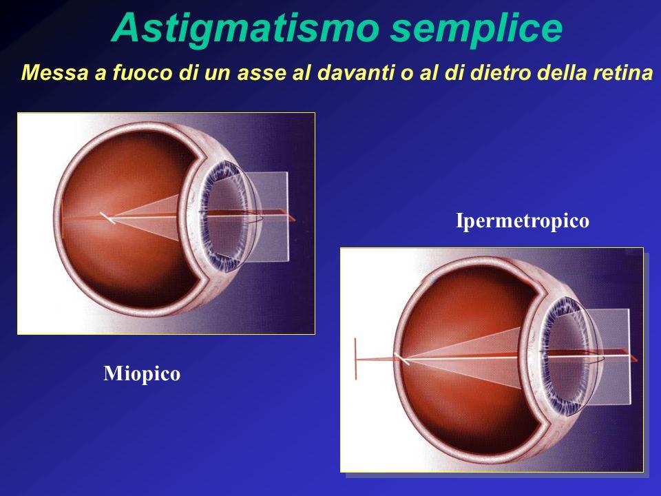 Astigmatismo semplice