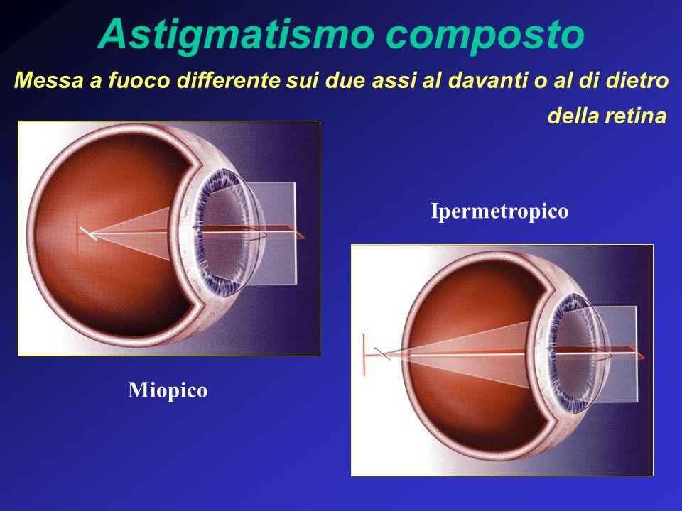 Astigmatismo composto