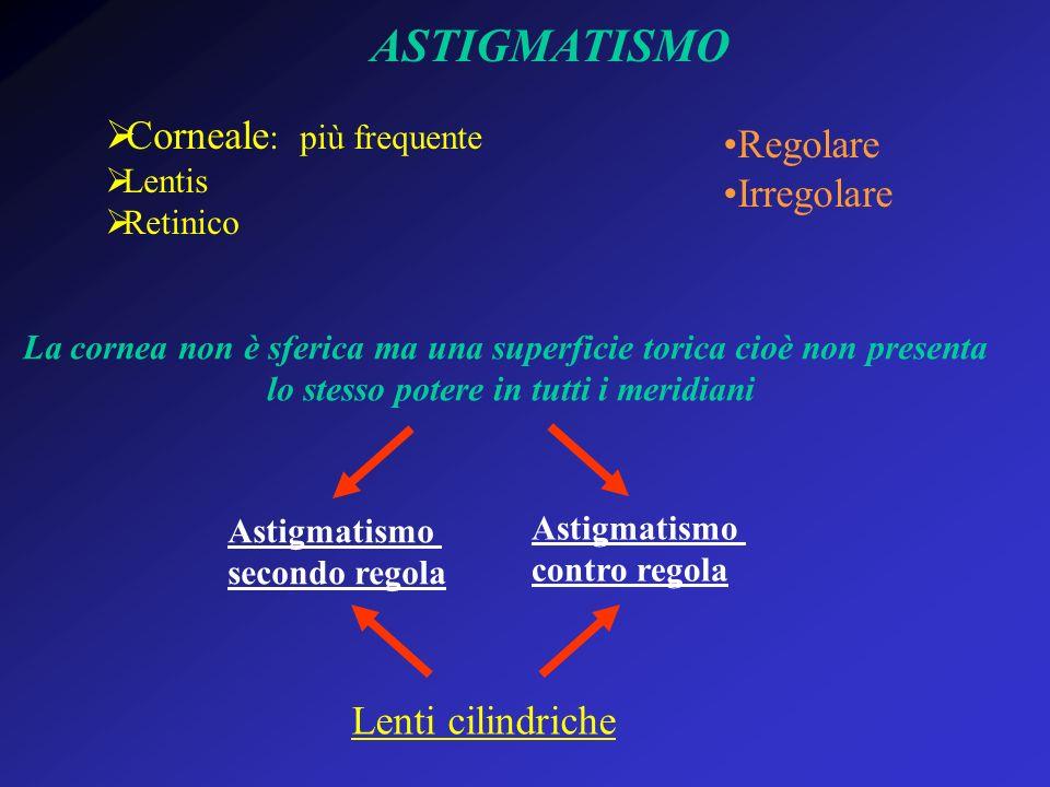 ASTIGMATISMO Corneale: più frequente Regolare Irregolare