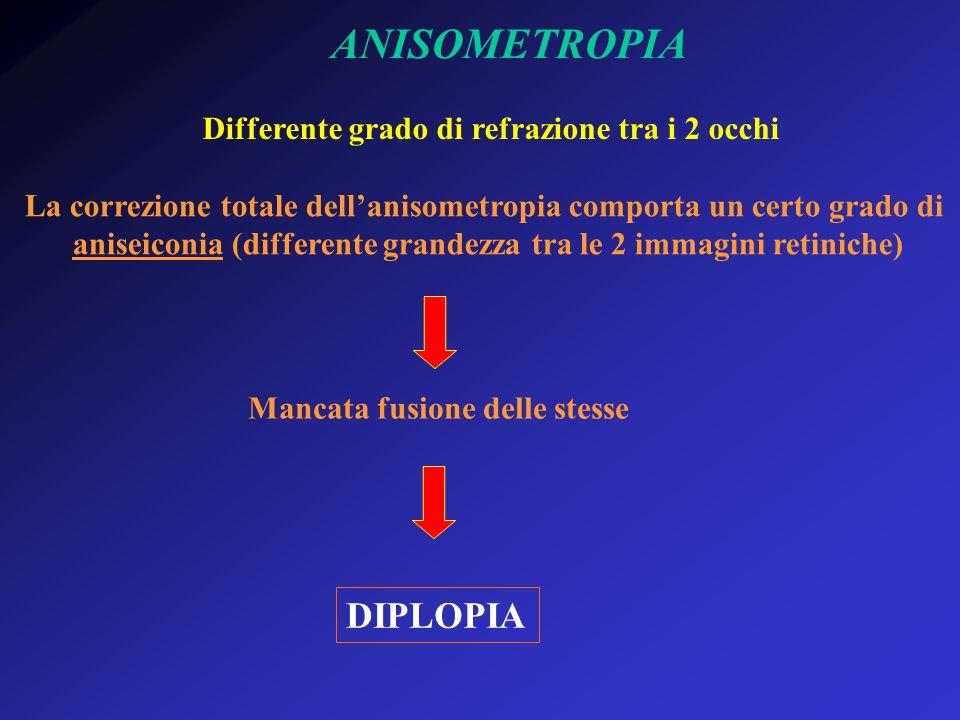 ANISOMETROPIA DIPLOPIA Differente grado di refrazione tra i 2 occhi