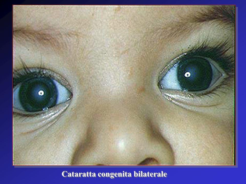 Cataratta congenita bilaterale