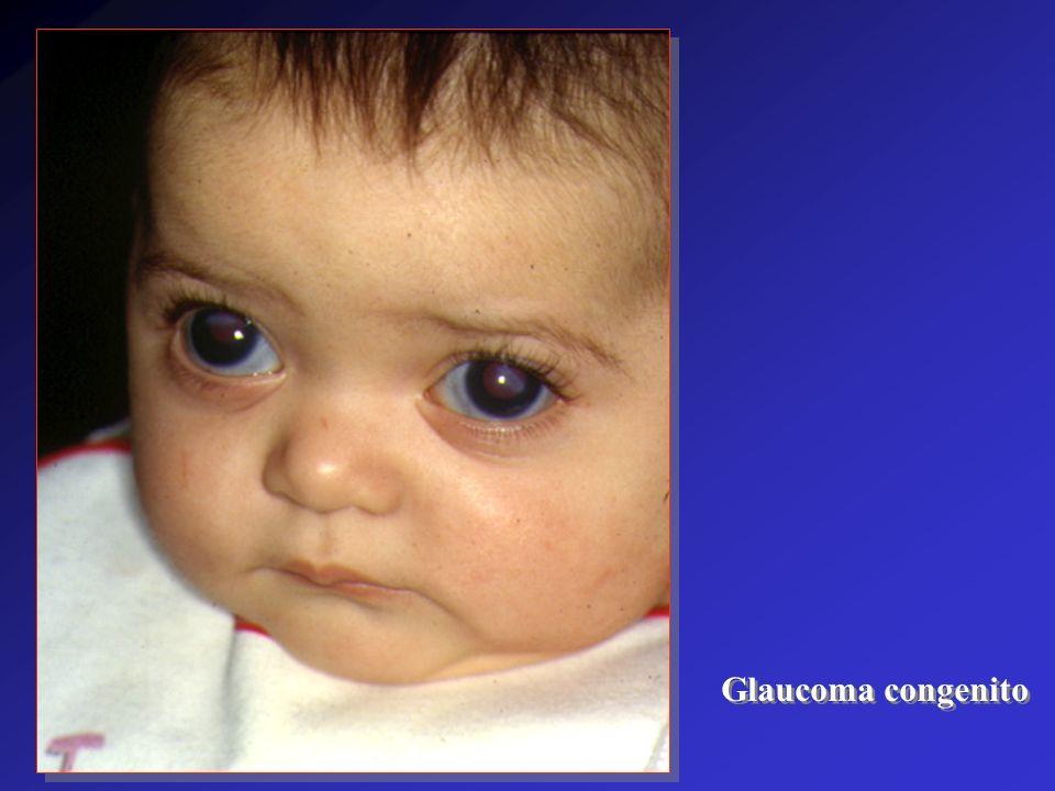 Glaucoma congenito