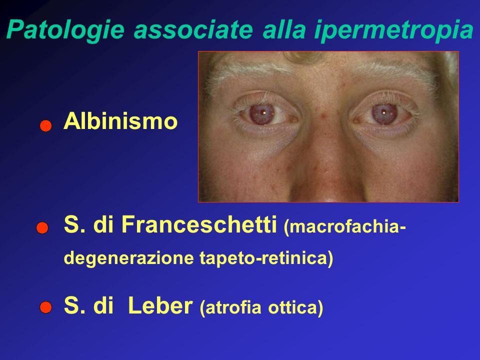 Patologie associate alla ipermetropia