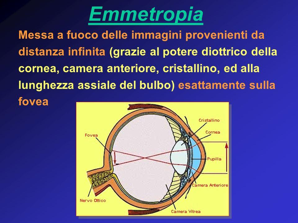 Emmetropia