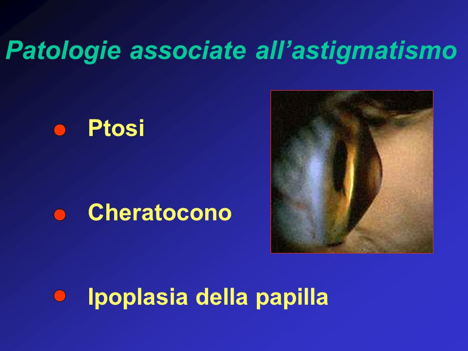 Patologie associate all'astigmatismo