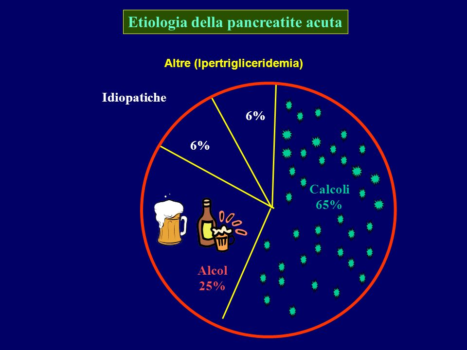 Etiologia della pancreatite acuta