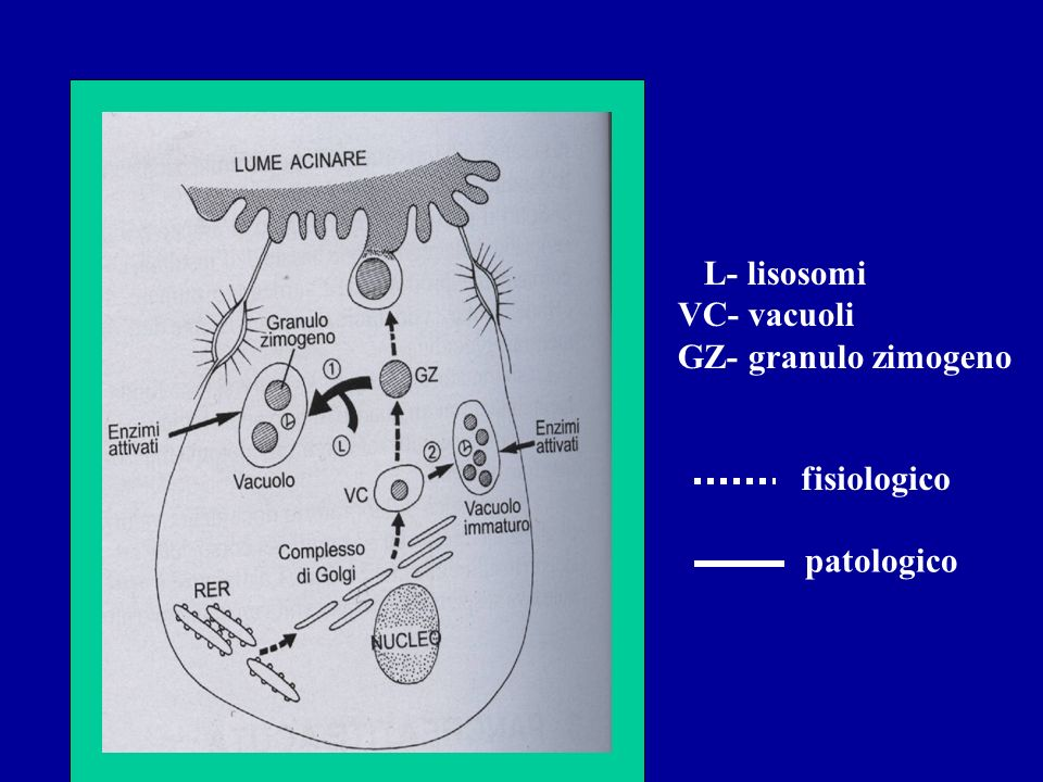 L- lisosomi VC- vacuoli GZ- granulo zimogeno fisiologico patologico