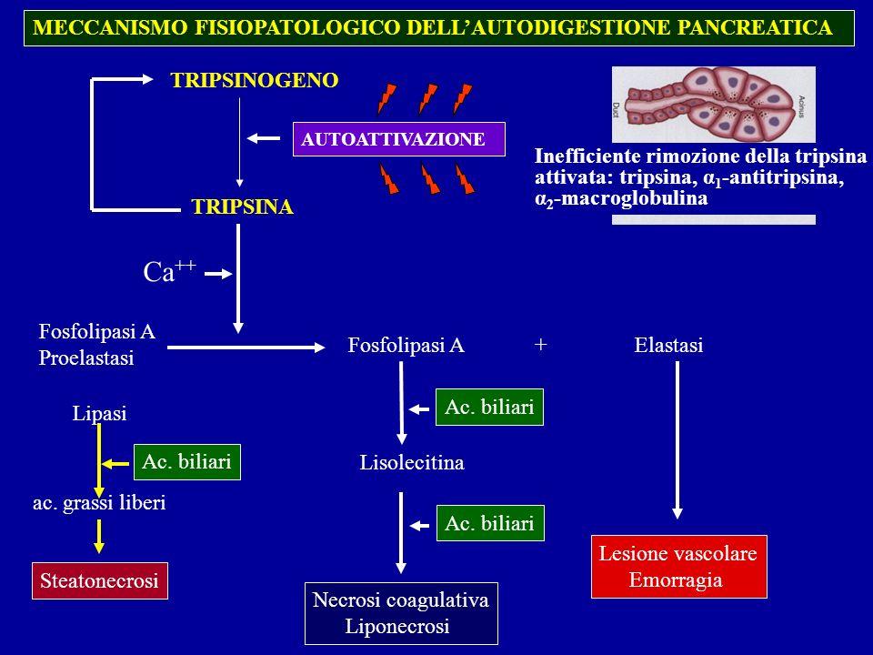 Ca++ MECCANISMO FISIOPATOLOGICO DELL'AUTODIGESTIONE PANCREATICA