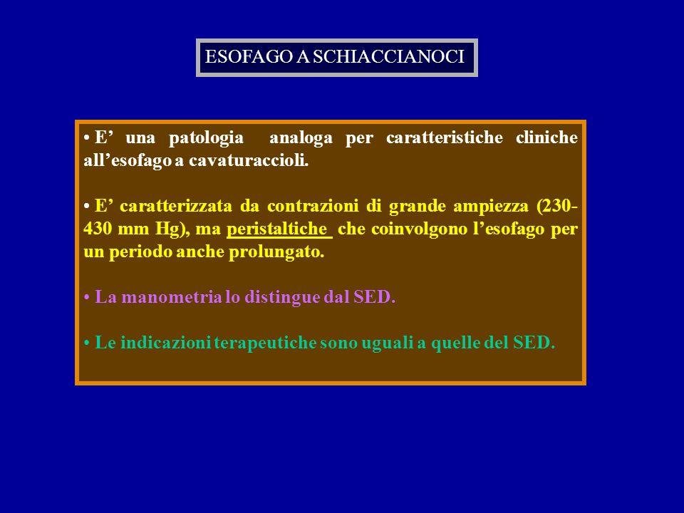 ESOFAGO A SCHIACCIANOCI