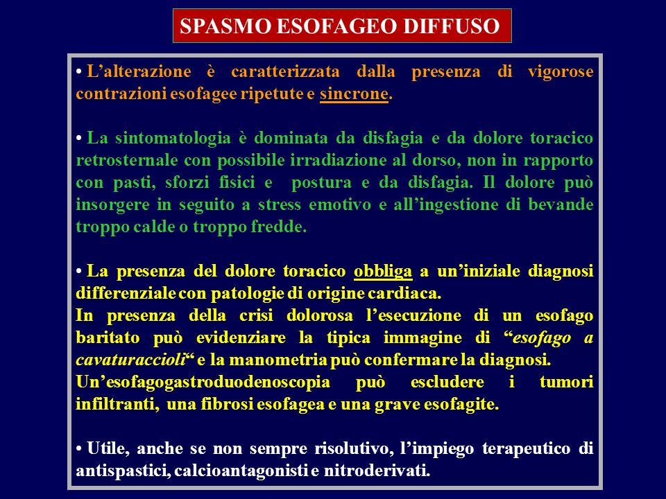 SPASMO ESOFAGEO DIFFUSO