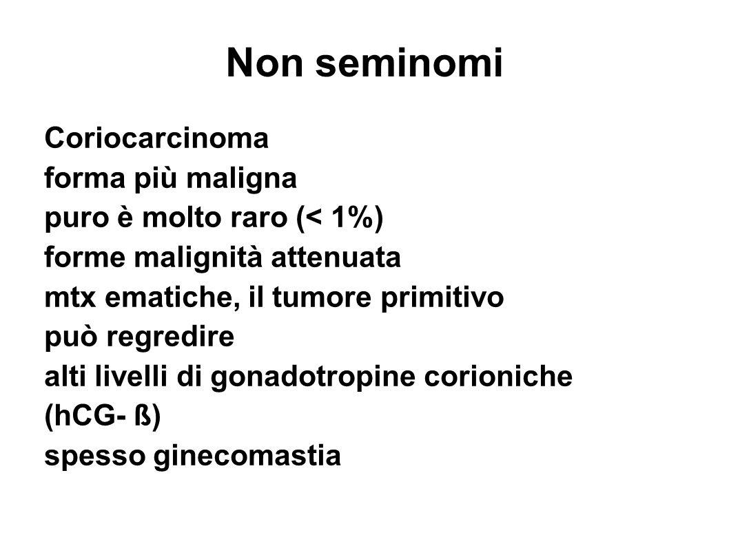 Non seminomi Coriocarcinoma forma più maligna