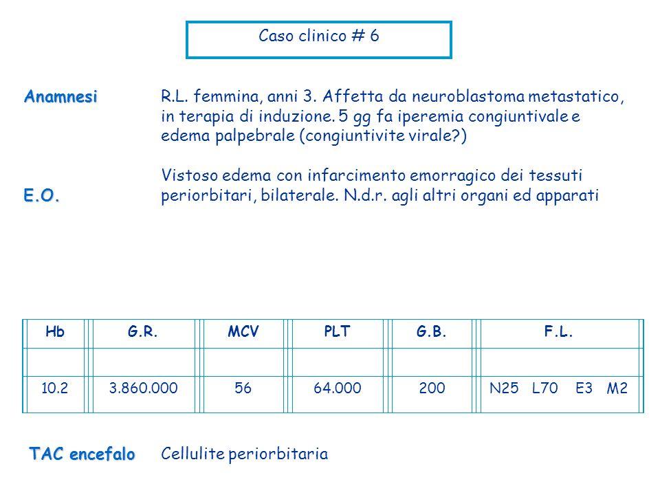 Cellulite periorbitaria