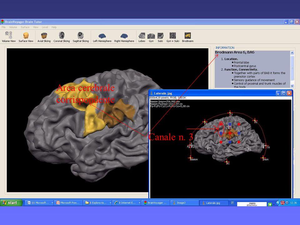 Area cerebrale corrispondente