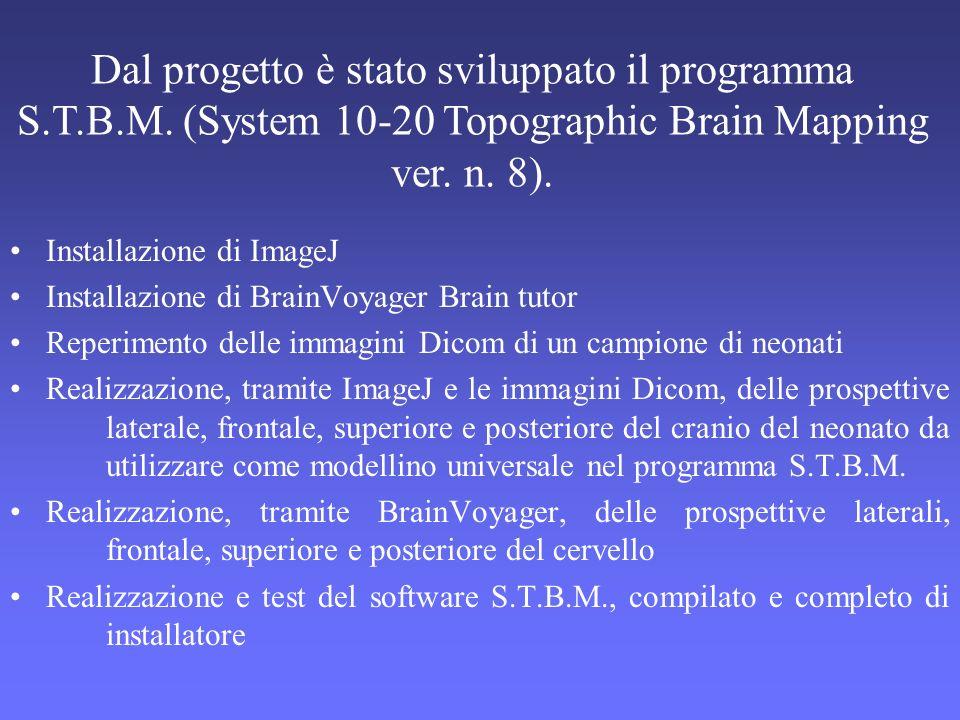 Dal progetto è stato sviluppato il programma S. T. B. M