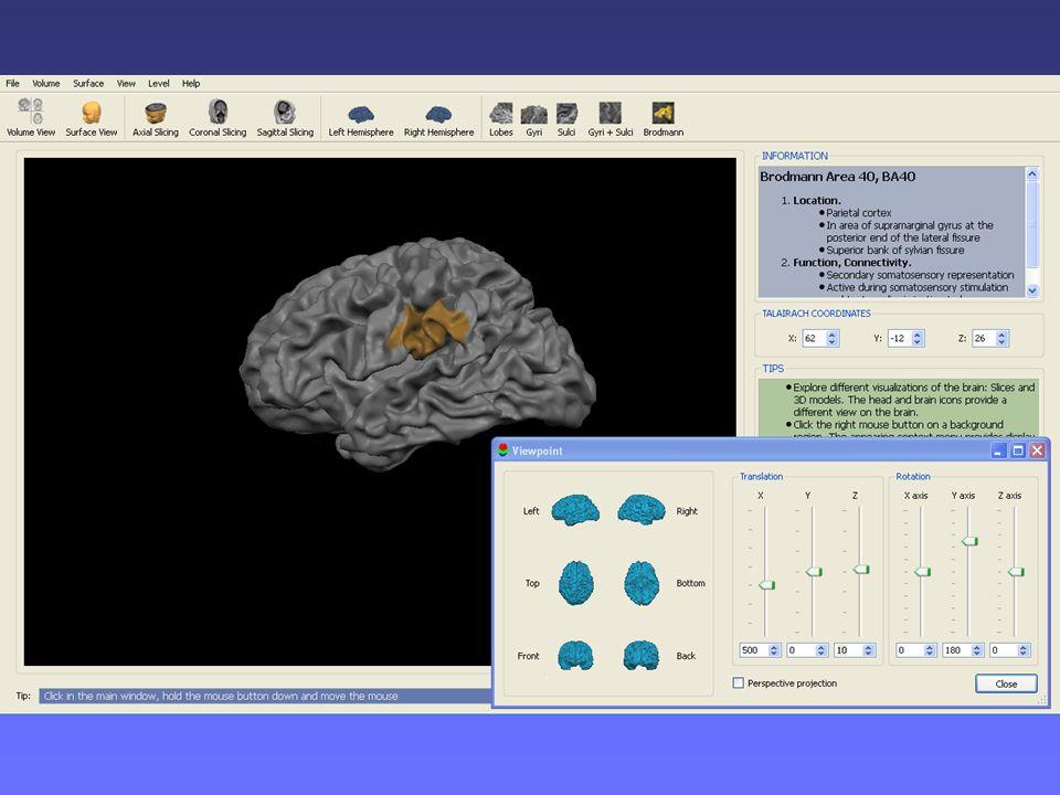 Il modellino di cervello è ricavato ogni volta dal programma BrainVojager Brain Tutor, in base all'area cerebrale sotto indagine, che consente di visualizzare, su un cervello tridimensionale, solchi, circonvoluzioni e aree di Brodmann con relative funzioni e localizzazioni.
