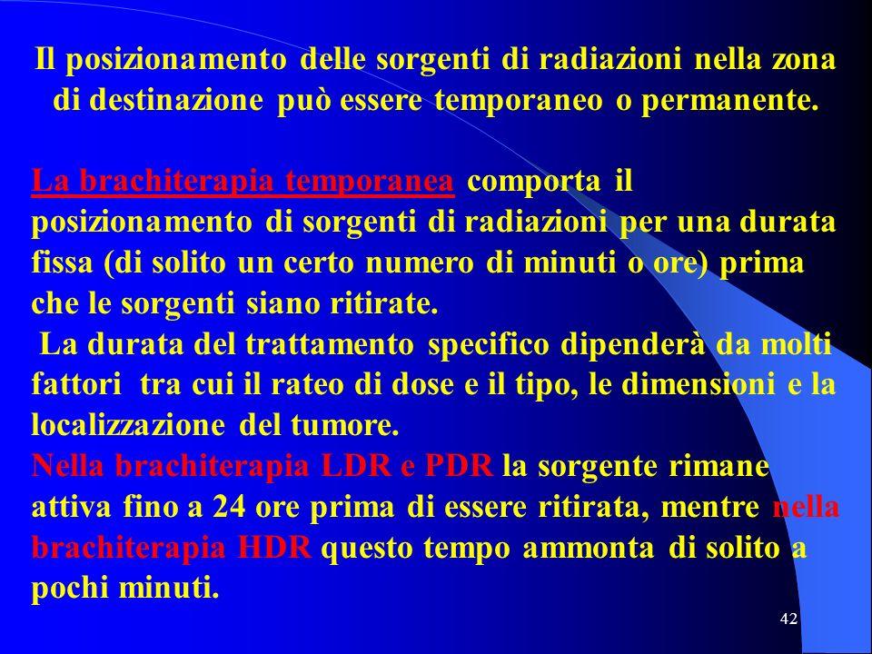 Il posizionamento delle sorgenti di radiazioni nella zona di destinazione può essere temporaneo o permanente.