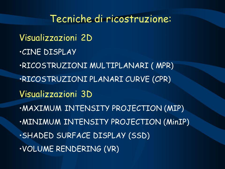 Tecniche di ricostruzione: