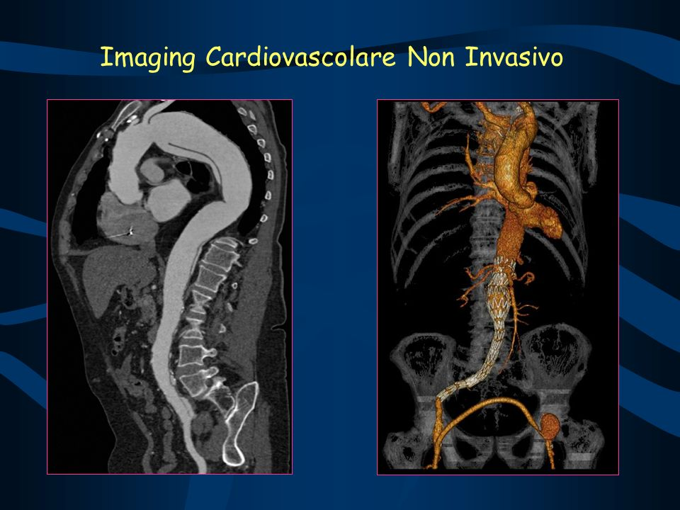 Imaging Cardiovascolare Non Invasivo