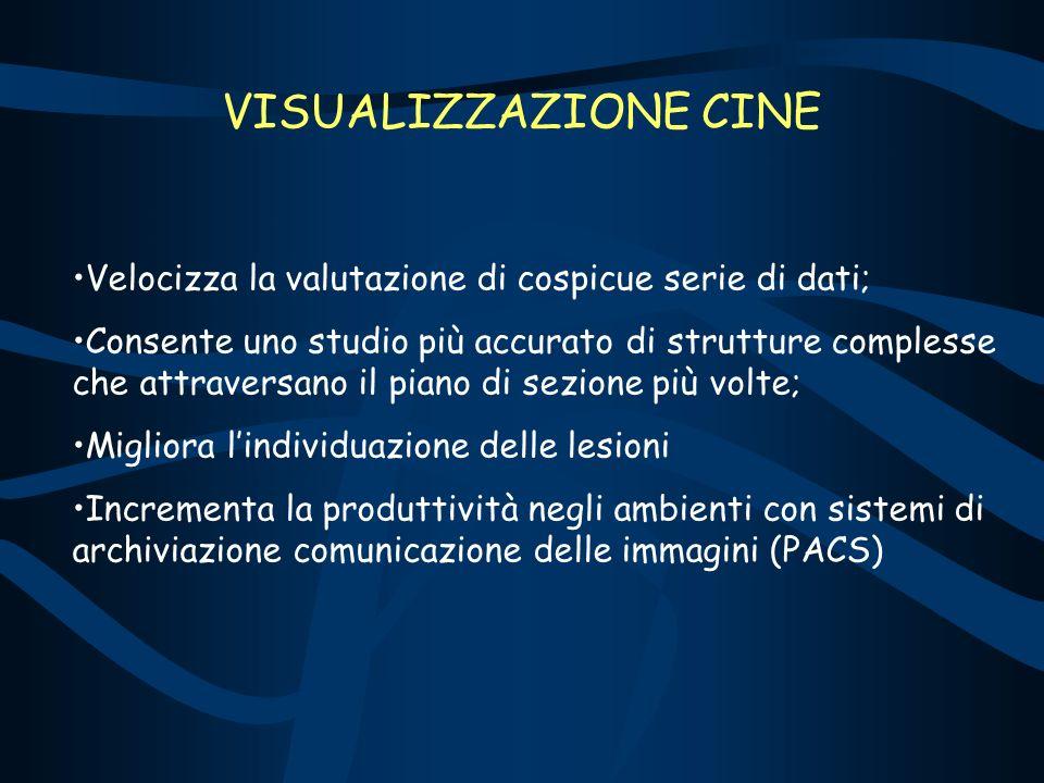 VISUALIZZAZIONE CINE Velocizza la valutazione di cospicue serie di dati;