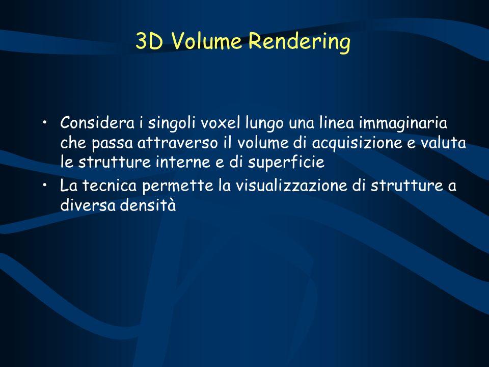 3D Volume Rendering