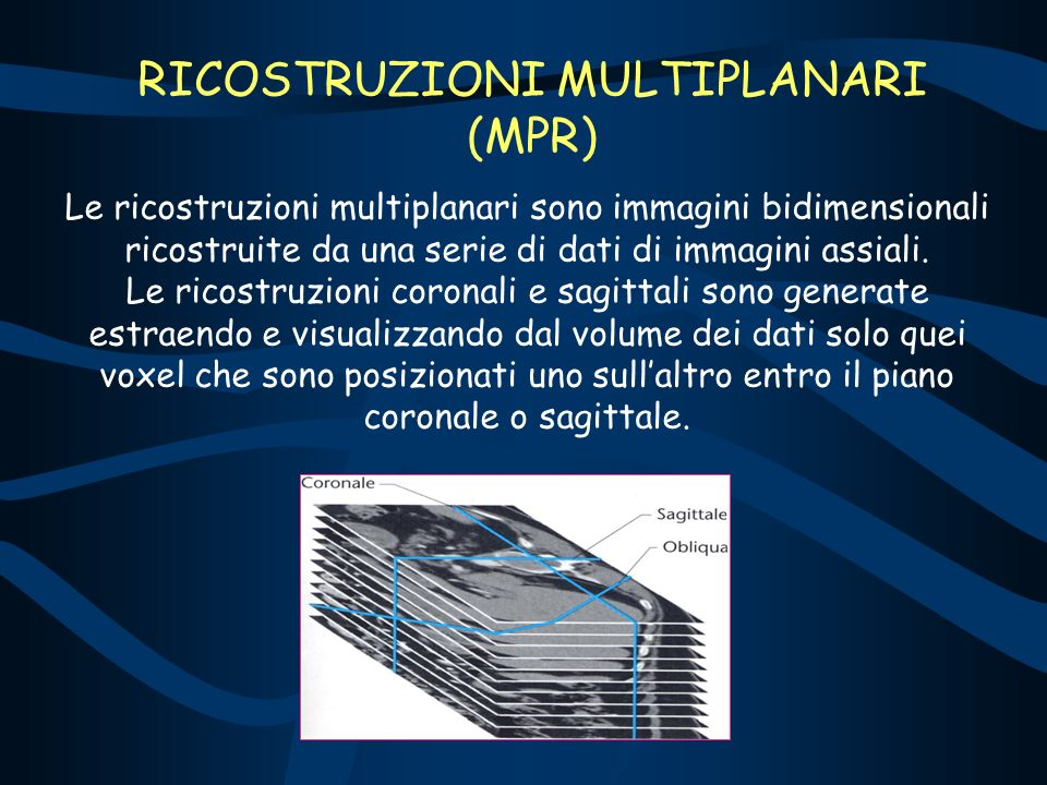 RICOSTRUZIONI MULTIPLANARI (MPR)