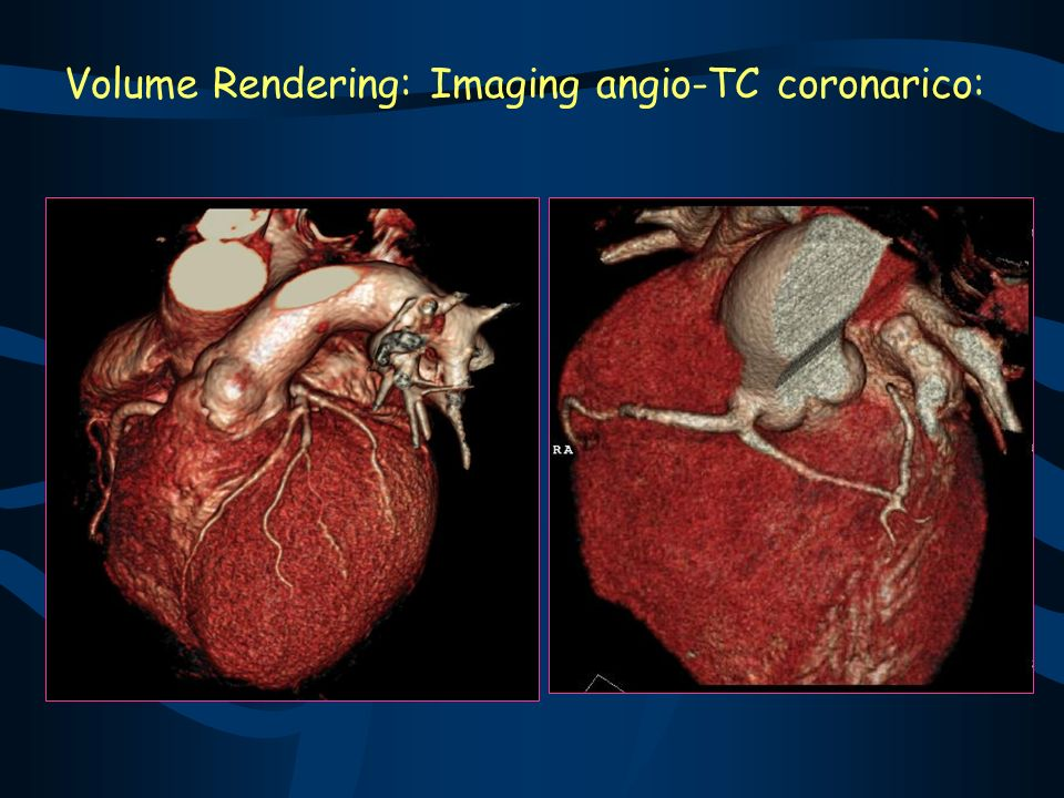 Volume Rendering: Imaging angio-TC coronarico: