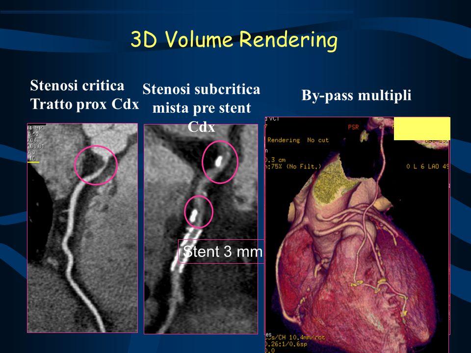 3D Volume Rendering Stenosi critica Stenosi subcritica Tratto prox Cdx