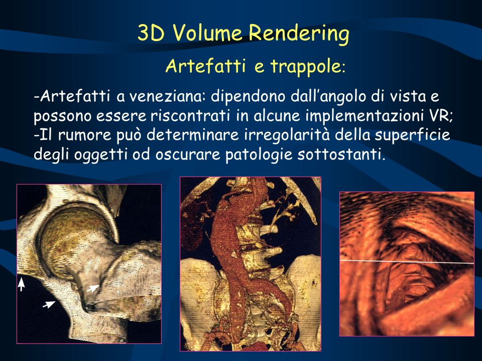 3D Volume Rendering Artefatti e trappole: