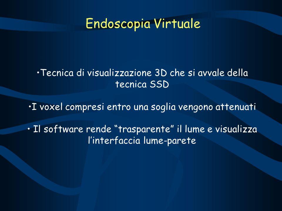 Endoscopia Virtuale Tecnica di visualizzazione 3D che si avvale della tecnica SSD. I voxel compresi entro una soglia vengono attenuati.