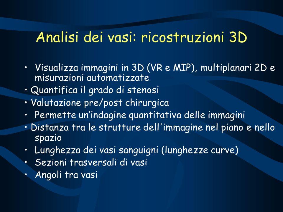 Analisi dei vasi: ricostruzioni 3D
