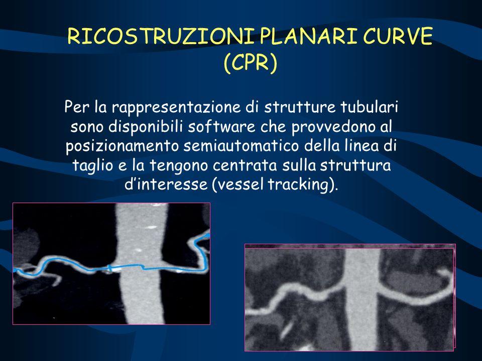 RICOSTRUZIONI PLANARI CURVE (CPR)